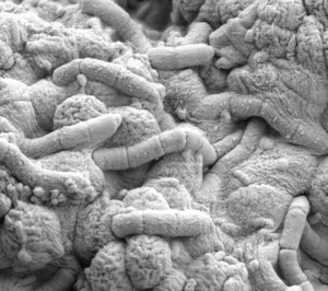 electron-microscope-view-of-bacteria